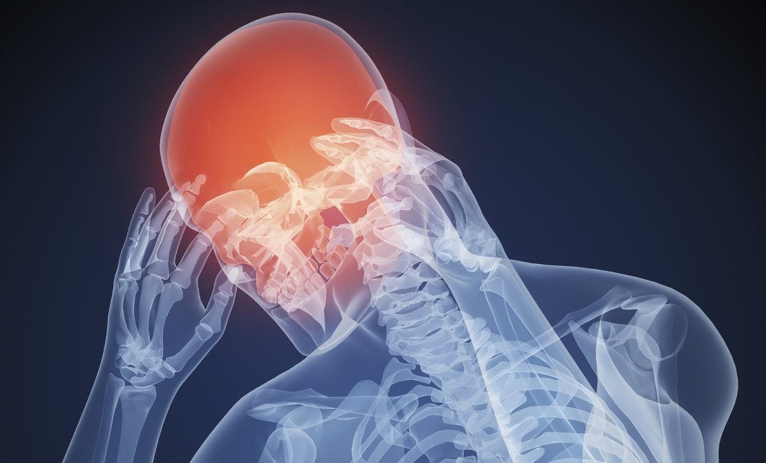 Xray image of a male holding his head with a red highlighted skull to indicate headache pain