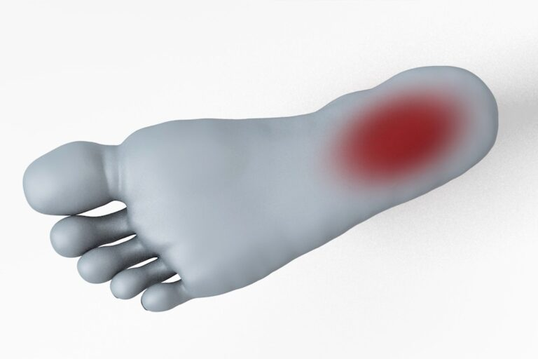 foot pain plantar fasciitis east sussex osteopaths